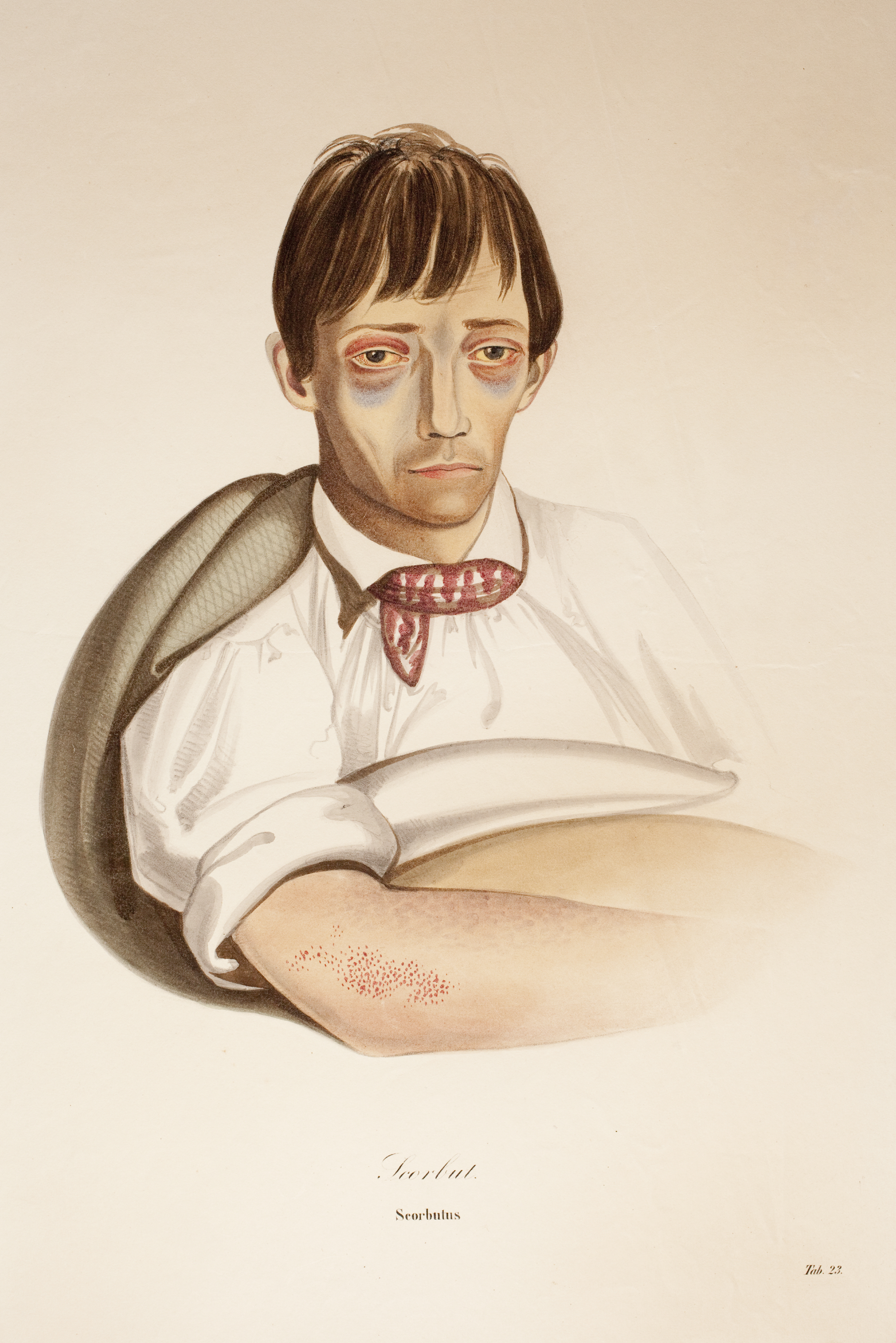 Hand-coloured print of tired and unwell looking man in bed.