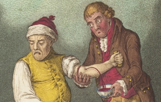 Landscape crop of surgeon bleeding a patient into a bowl.