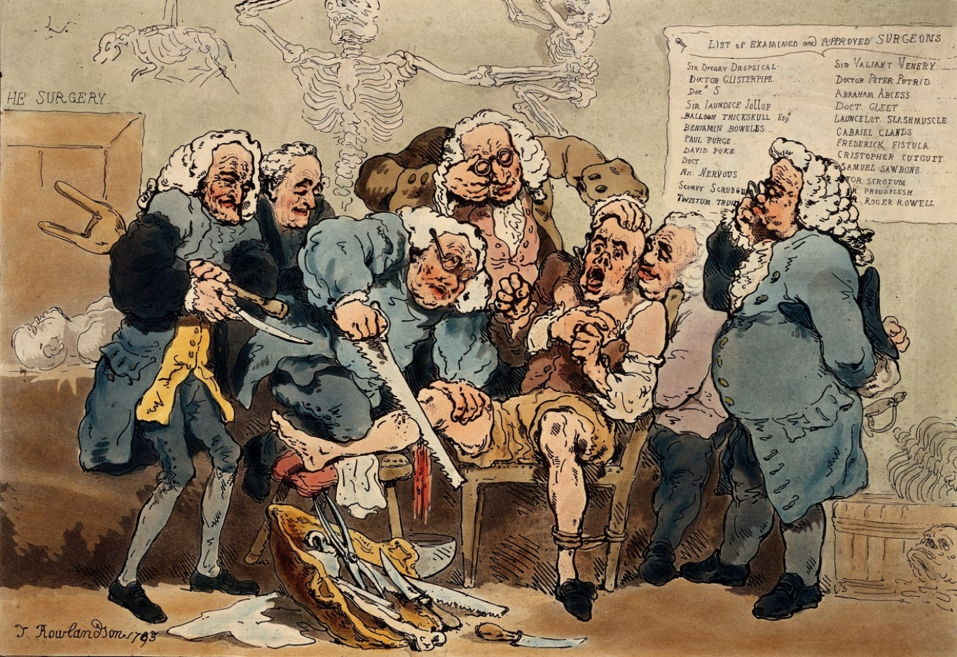 'Amputation', 1793 - Five surgeons participating in the amputation of a man's leg. By Thomas Rowlandson.