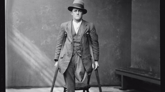 Black and white mugshot of one-legged man standing with crutches and wearing a hat.