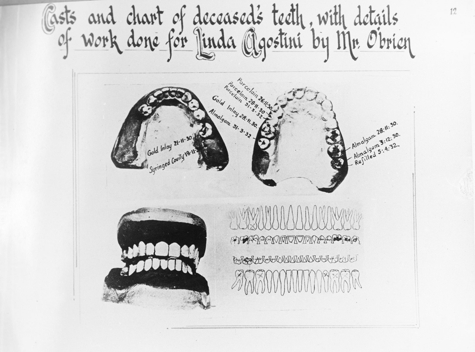 Images of teeth